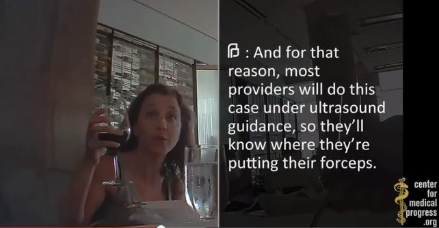planned-parenthood-organi-aborto-video