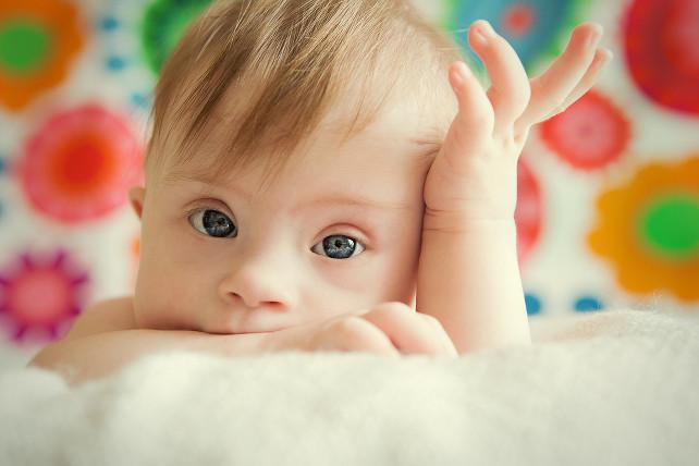 neonata-sindrome-down-shutterstock_144941101