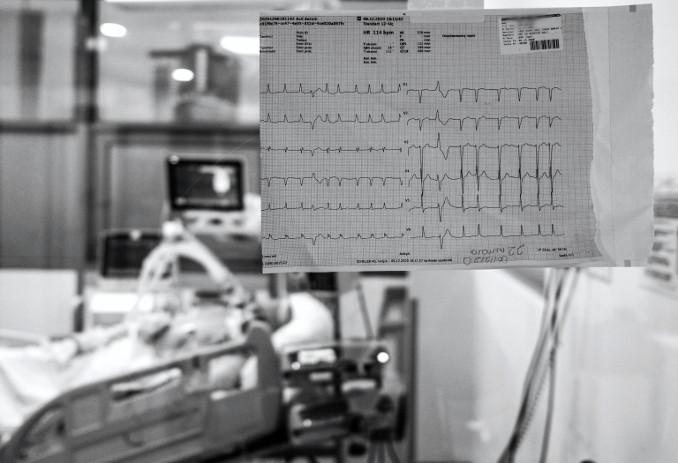 Elettrocardiogramma in reparto di ospedale