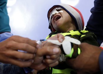 Bambino malnutrito in Yemen
